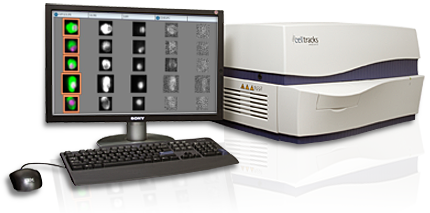 THE CELLTRACKS ANALYZER II